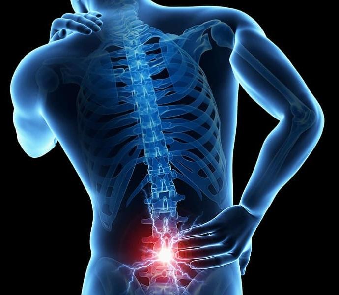 tratament hernie de disc